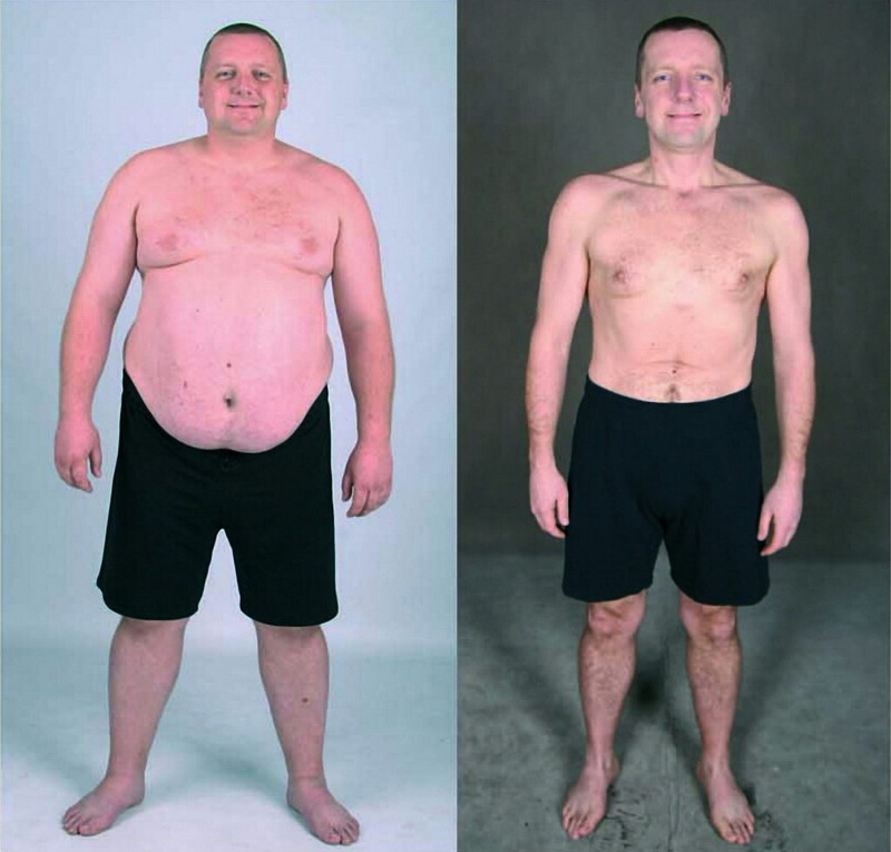 """""""Зважені та щасливі"""": як колоритний коломиянин із 152 кг схуд наполовину (фото)"""